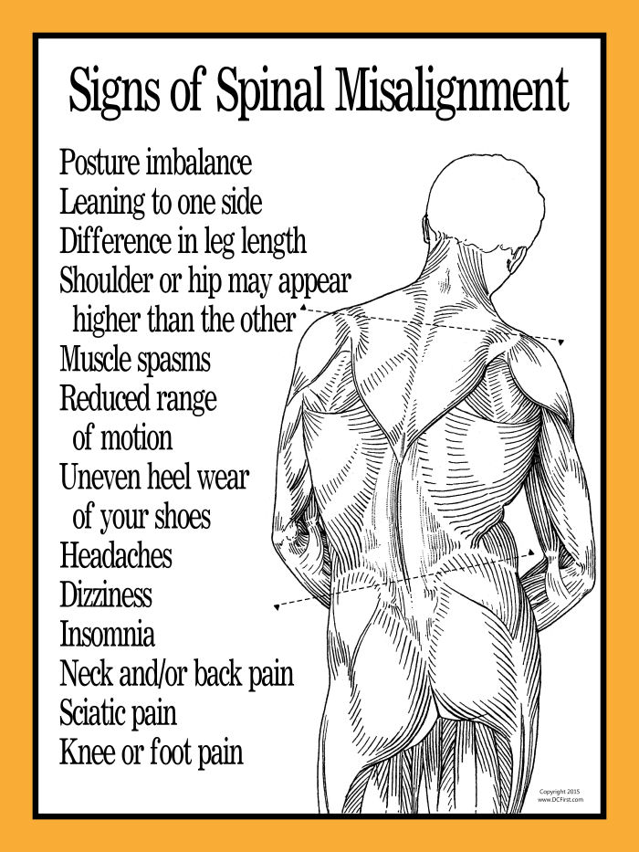 Signs of Spinal Misalignment